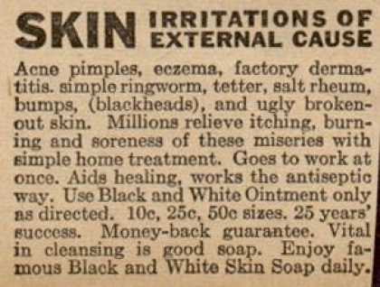 Unknown's Black and White Ointment and Soap – Skin Irritations Of External Cause (1944)